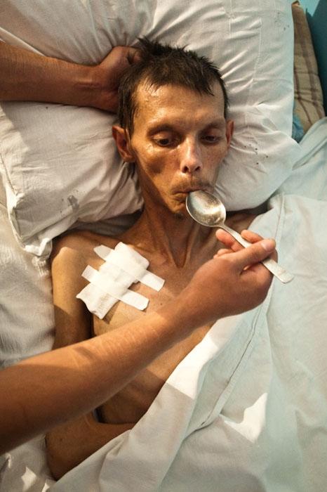 туберкулезом больной фото человек