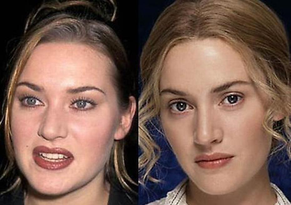 ринопластика звезд фото до и после нос стеноз обычно представляет