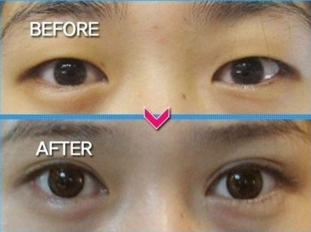 Операция по изменению разреза глаз