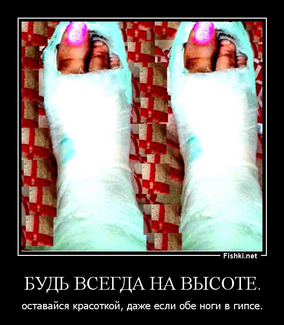демотиватор нога гипс получить надежное ограждение