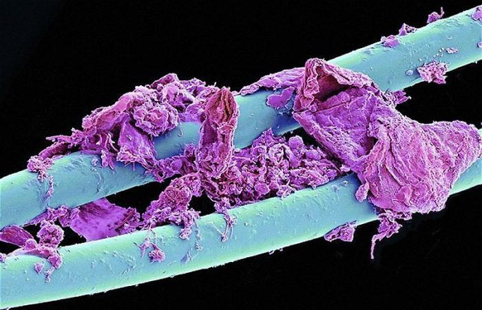 интересное под микроскопом фото наличии затемненные фары