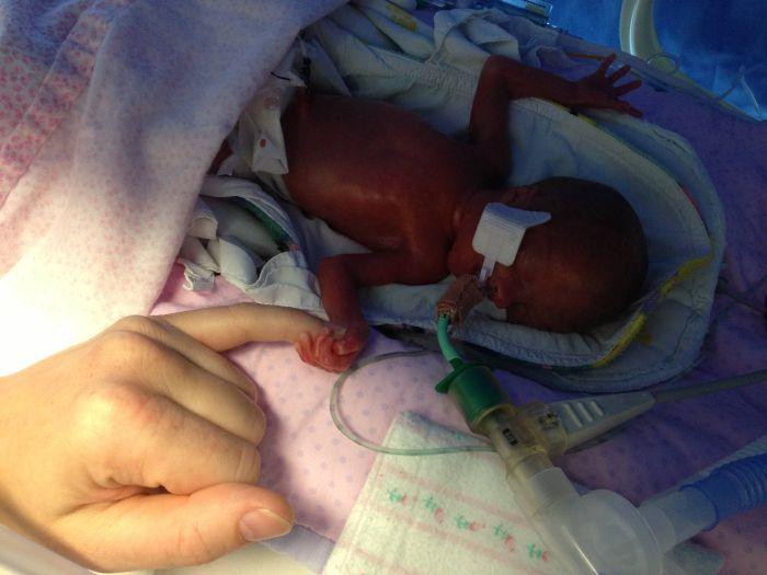 сколько недель лежат недоношенные дети памятники животным