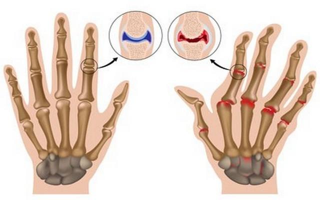Изображение - Что будет если щелкать суставами пальцев 1394453056_2