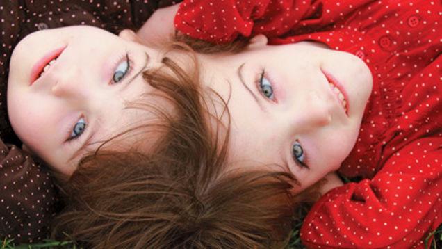 10. Некоторые сиамские близнецы могут видеть глазами друг друга и читать мысли друг друга близнецы, удивительное рядом, факты