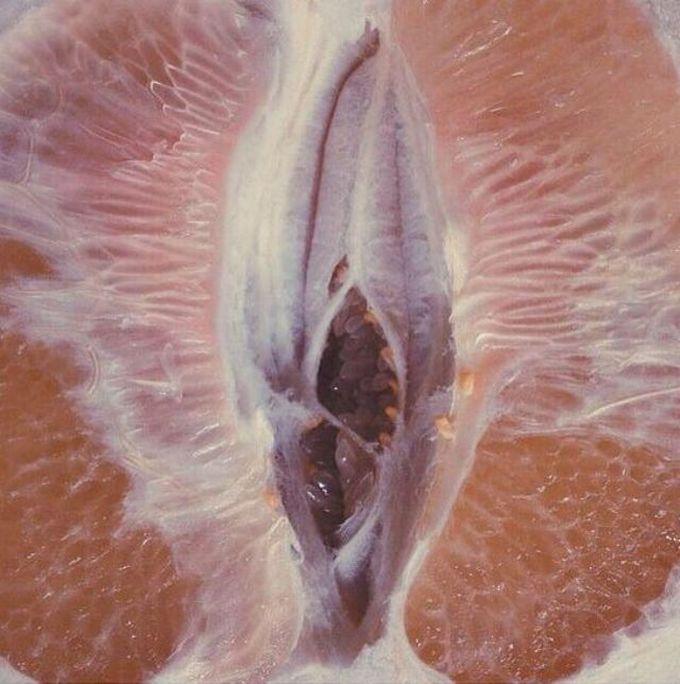 ¡Cuidado! Candidiasis puede causar escamas vaginales