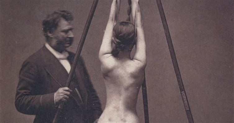 18 одновременно пугающих и завораживающих фотографий медицины прошлого медицина, ретро, фото