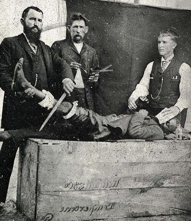 8. Операции не всегда проводились под анестезией. Пациентам перед операцией давали лишь немного эфира, вот и весь наркоз, приблизительно 1885 год медицина, ретро, фото
