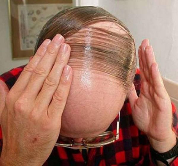 Короткие мужские стрижки для лысеющих