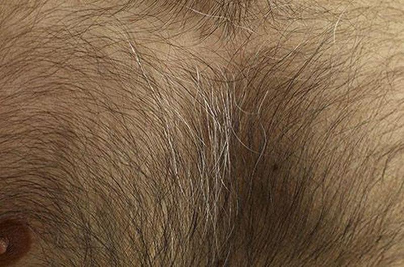 Волосяной покров на женском лобке фотографии порно фото лучшие