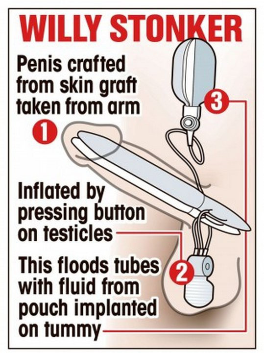 Имплантация пениса