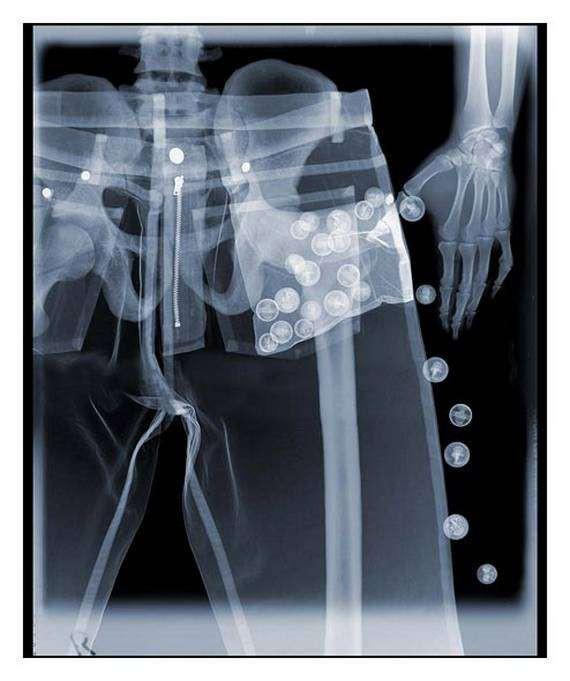 Кончают рот фото рентген одягу