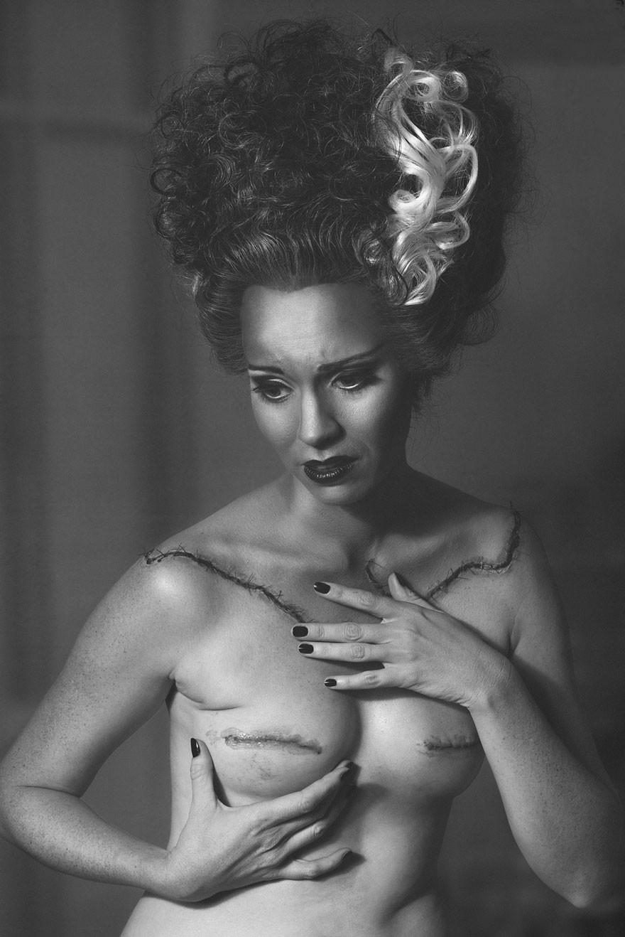 Женщина запечатлела этапы своей мастэктомии в серии оригинальных снимков