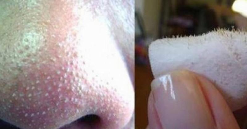 Как убрать черные точки на носу - Рецепты в домашних 40