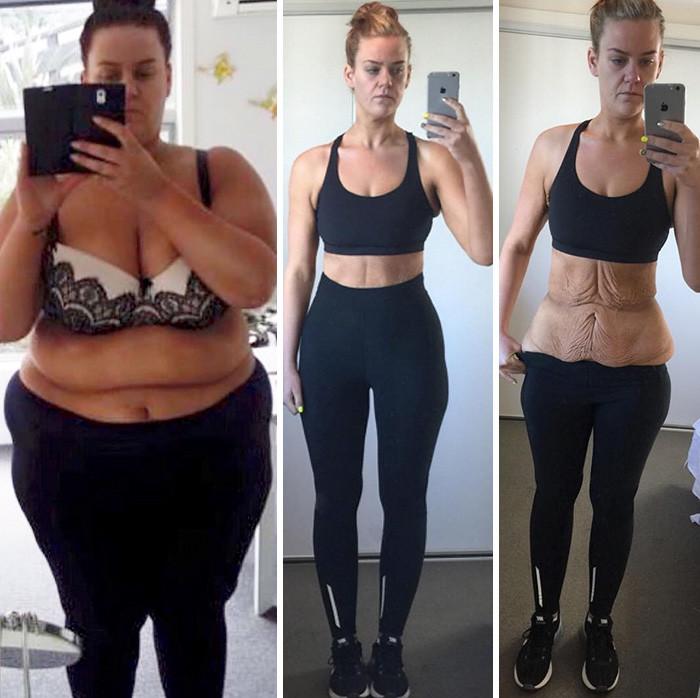 12. Из 169 кг в 83,85 кг за 11 месяцев похудение, результат