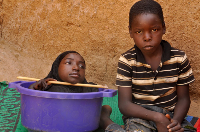 19-летняя нигерийка всю жизнь живет в пластиковом тазу африка, жизнь, инвалидность, трагедия