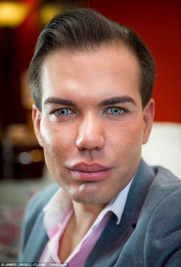 Живой Кен завязал с пластикой, когда чуть не остался без носа после 43 операций нос, пластика