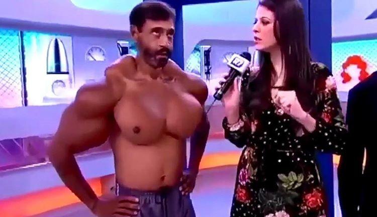 Бодибилдер сделал инъекции масла в свои мускулы - и взгляните, что из этого вышло бодибилдинг, идиоты, масло, фото