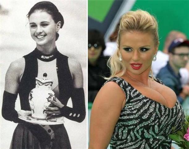 Анна Семенович знаменитость, тогда и сейчас