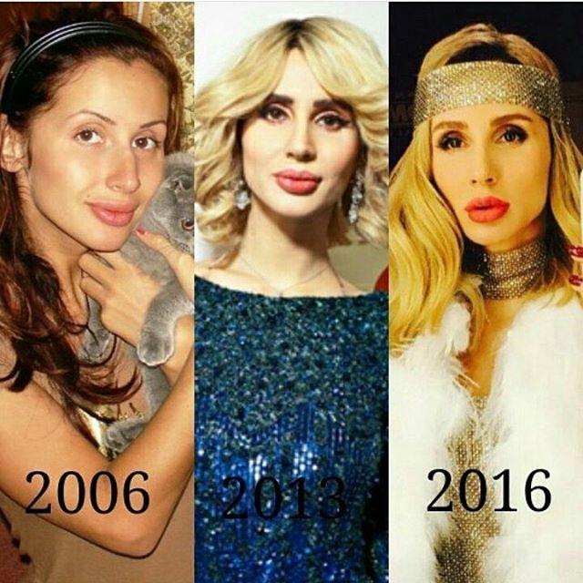 Лобода  знаменитость, тогда и сейчас