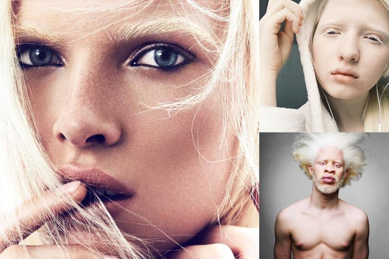 Модели альбиносы фото работа без опыта в улан удэ для девушек