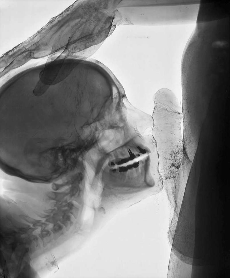 Жгут рентген минет глубокое горло груди порно деревне