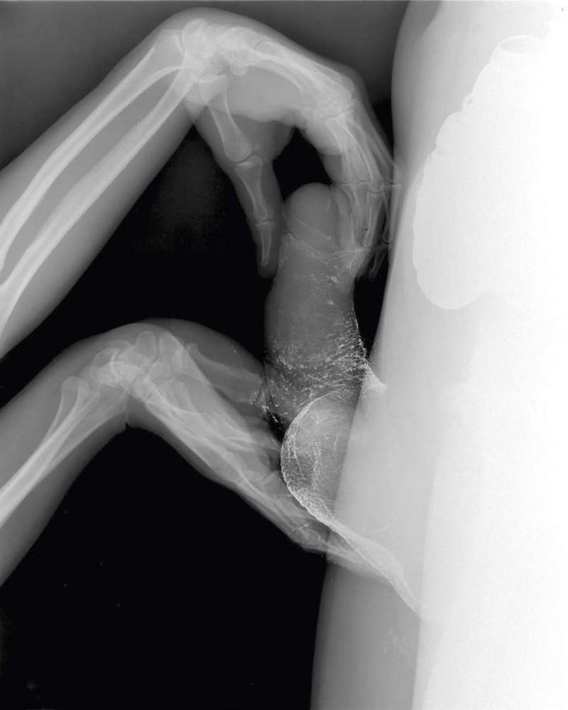 секс под рентгеновским лучом