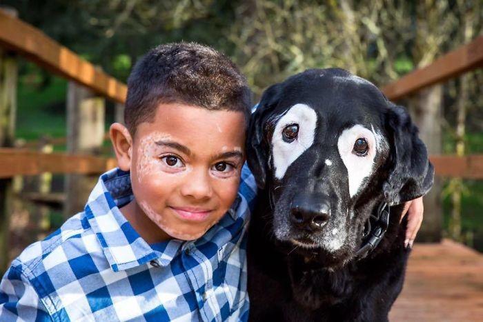 Мальчик с редким заболеванием кожи ненавидел свой внешний вид ...