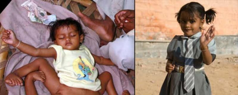 Ребенок который родился без кожи thumbnail