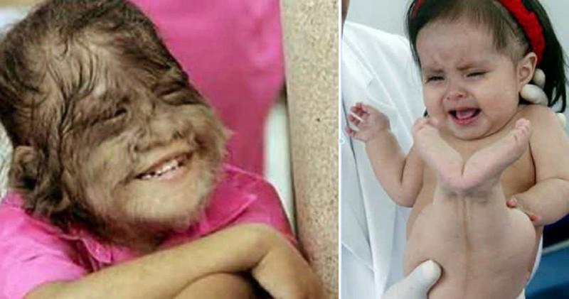 Дети, рожденные с невероятными генетическими дефектами