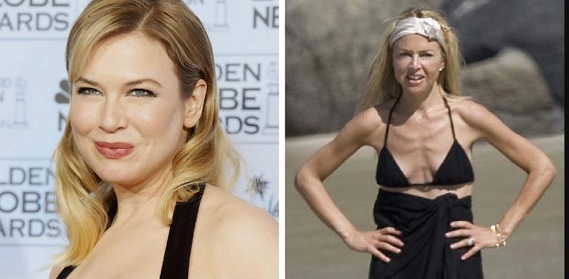 Похудевшие звезды: фото до и после - 300 экспертовРУ