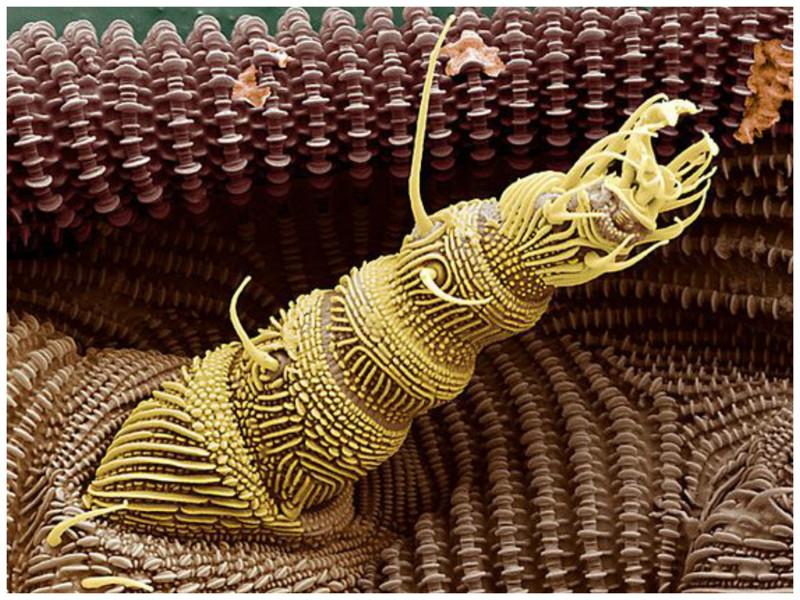 Задняя нога земляного клеща интересное, красота, микросъемка, удивительное