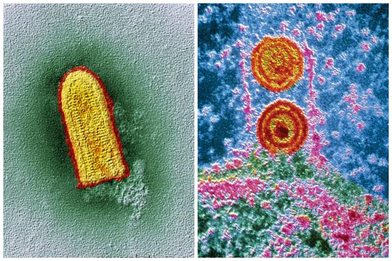 Какая красота - вирус бешенства и герпеса интересное, красота, микросъемка, удивительное