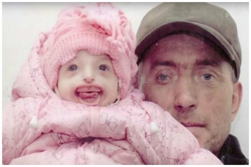 Впервые увидев новорожденную дочь, 42-летняя мать упала в обморок от ужаса Дарина Шпенглер, беременность, болезнь, ребенок