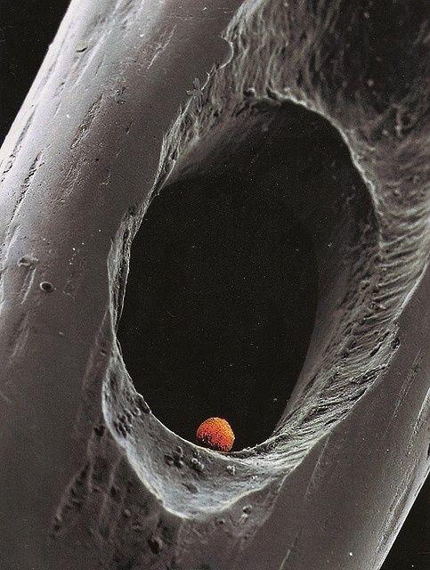 Эмбрион в игольном ушке геометрия, красота, микросъемка, природа, удивительно