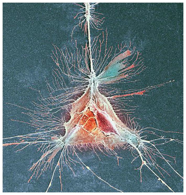 Эта клетка олигодендроцит образует миелиновые оболочки вокруг ваших нервных волокон. Их разрушение ведет к инвалидности и смерти геометрия, красота, микросъемка, природа, удивительно