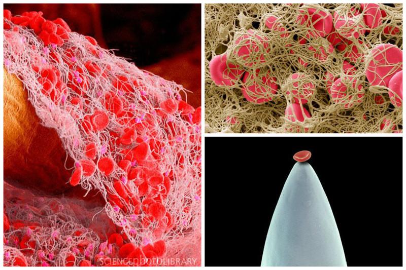 Человеческая кровь. Справа внизу - красная кровяная клетка на кончике иглы геометрия, красота, микросъемка, природа, удивительно