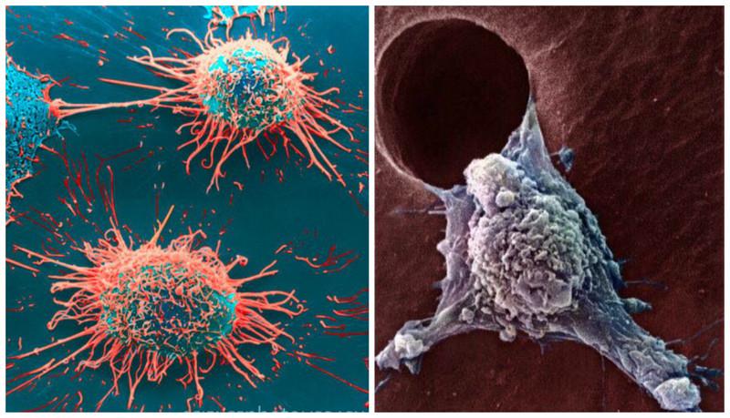 Рак (заболевание) геометрия, красота, микросъемка, природа, удивительно