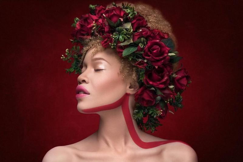 Афроамериканка-альбинос - новая сенсация мирового модельного бизнеса Счастливый конец, альбинос, гадкий утенок, модель, модельный бизнес, необычная красота, современная Золушка, успех