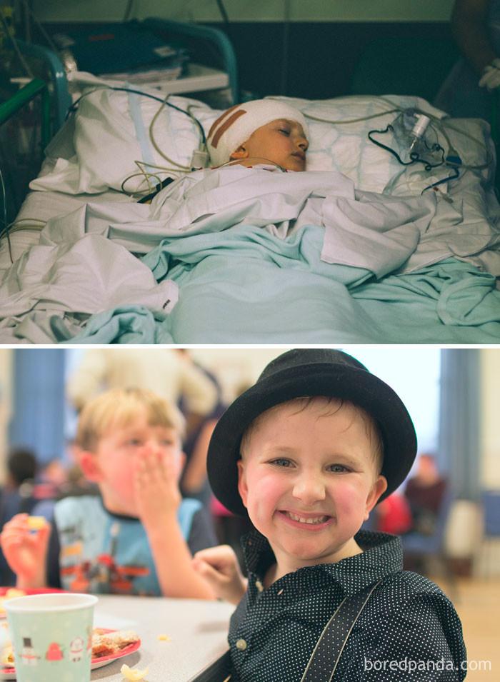 14 курсов химиотерапии, 30 сеансов лучевой терапии, 4 операции. Этот настоящий мужчина победил рак! выздоровление, до и после, заболевание, недуг, преображение, рак, трансформация, фото