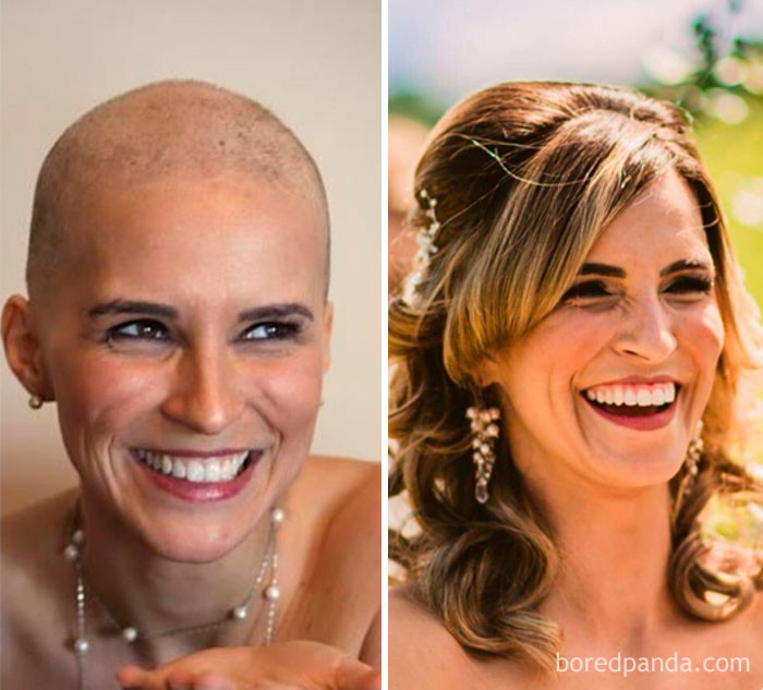 2 года разницы. Слева - во время курса химиотерапии, справа - на собственной свадьбе. выздоровление, до и после, заболевание, недуг, преображение, рак, трансформация, фото