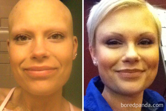 5 лет выздоровление, до и после, заболевание, недуг, преображение, рак, трансформация, фото
