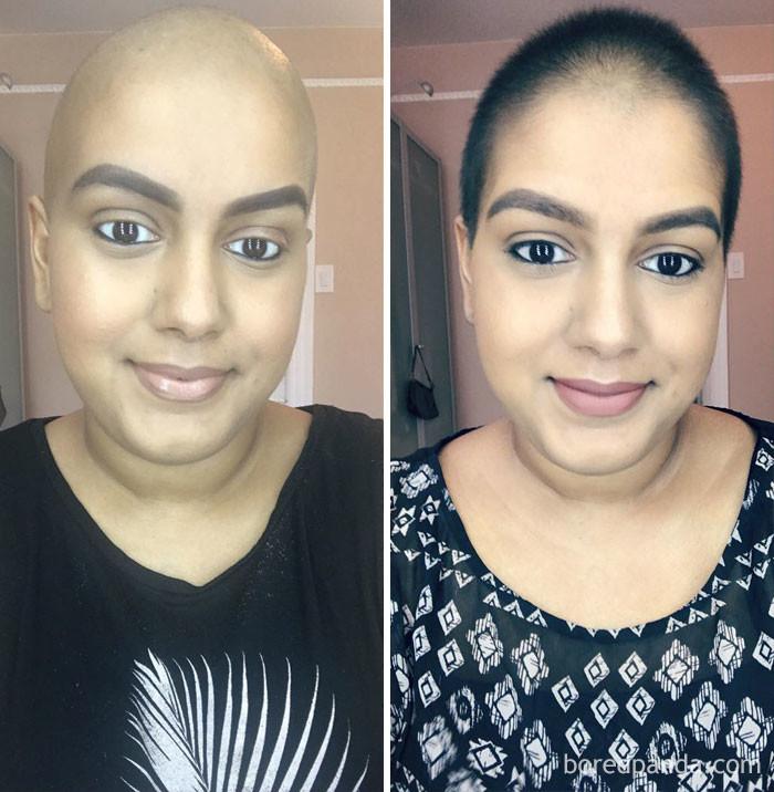 Разница - 1 месяц выздоровление, до и после, заболевание, недуг, преображение, рак, трансформация, фото