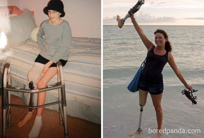 Разница между фото - 10 лет выздоровление, до и после, заболевание, недуг, преображение, рак, трансформация, фото