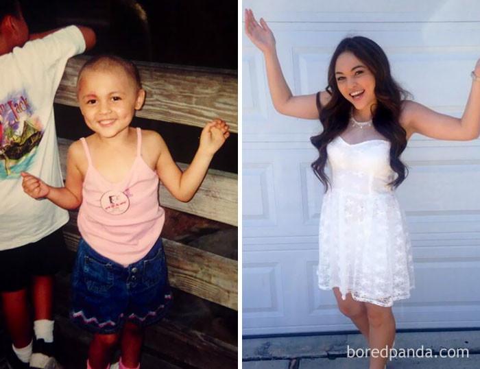 """""""В детстве я победила рак, а сейчас - школу!"""" выздоровление, до и после, заболевание, недуг, преображение, рак, трансформация, фото"""