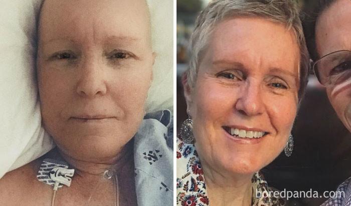 6 месяцев выздоровление, до и после, заболевание, недуг, преображение, рак, трансформация, фото
