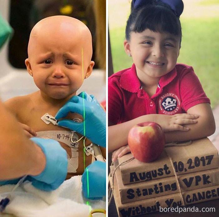 София победила рак 3 года назад выздоровление, до и после, заболевание, недуг, преображение, рак, трансформация, фото