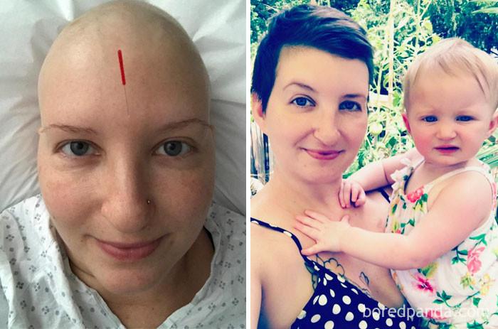 """""""Не могу поверить, что прошло всего 10 месяцев"""" выздоровление, до и после, заболевание, недуг, преображение, рак, трансформация, фото"""