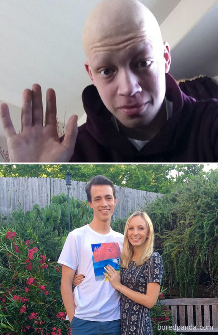 3 года выздоровление, до и после, заболевание, недуг, преображение, рак, трансформация, фото