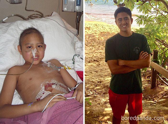 Пересёк 8-летний рубеж выздоровление, до и после, заболевание, недуг, преображение, рак, трансформация, фото