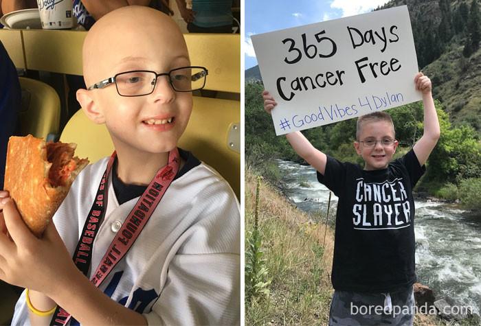 1 год выздоровление, до и после, заболевание, недуг, преображение, рак, трансформация, фото